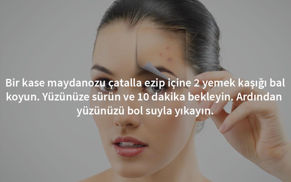 sivilce-maydanoz