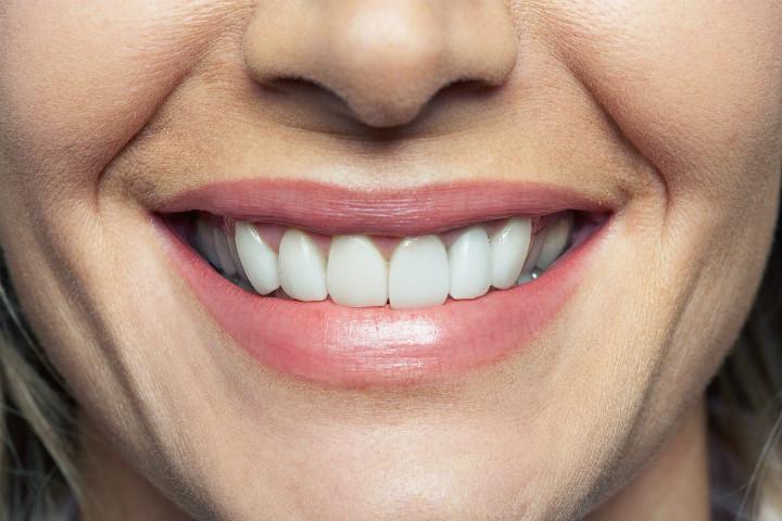 https://www.rd.com/health/conditions/teeth-disease-dental-problems/ | rd