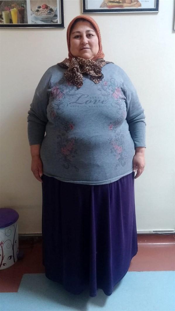 https://www.yenisafak.com/hayat/obeziteyi-engelli-oglu-icin-yendi-70-kilo-verdi-3409934 | Yenisafak.com